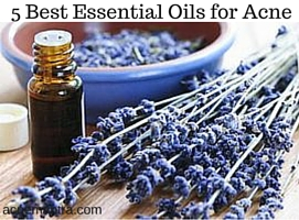 5 Best Essential Oils for Acne