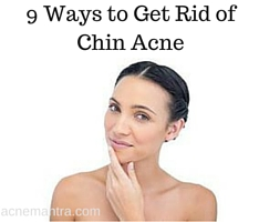 9 Ways to Get Rid of Chin Acne