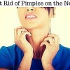 Get Rid of Pimples on the Neck