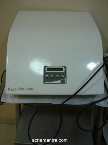 kaya-skin-clinic-acne-free-therapy-review-5