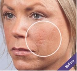 Dermaflage For Acne Scars Mantra