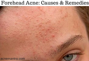 How To Get Rid Of Forehead Acne Acne Mantra